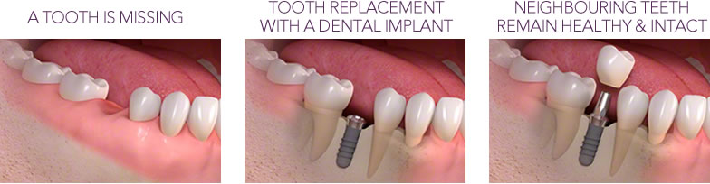 dental implants at refine dental care