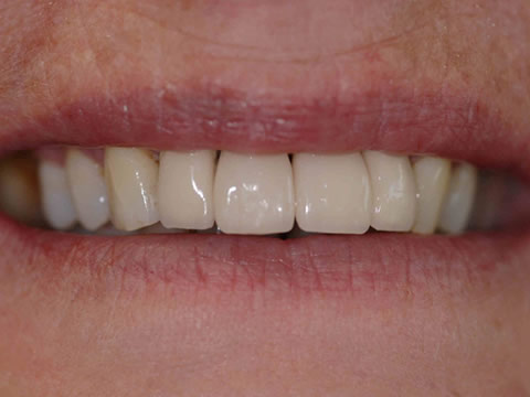 dental implants in Alfreton - after treatment