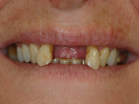 dental implants in Alfreton - before treatment