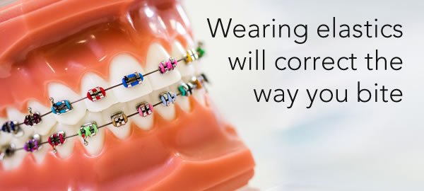wearing elastics during your orthodontics treatment will help improve your bite